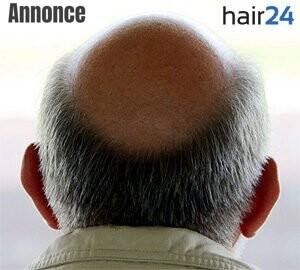 behandling af androgtent hårtab hos mænd