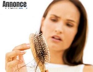 kvindeligt hårtab
